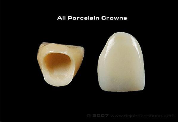 Porcelain Crowns Knox Terrace Dental